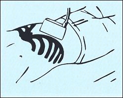 Схема наложения датчика для получения подреберного среза печени.