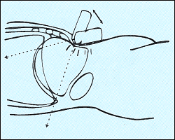 Схема движения датчика при УЗИ печени.