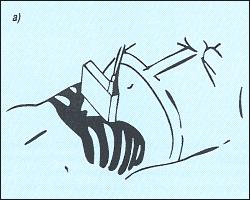 Схема наложения датчика для получения поперечного среза печени.