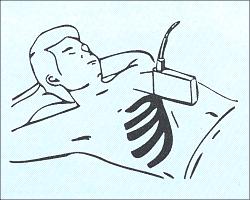 Продольное сканирование печени - схема наложения датчика.