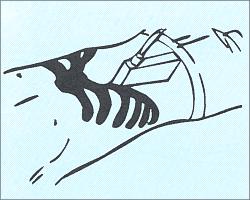 Продольное сканирование печени - плотный контакт с кожей.