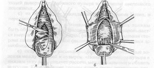 Операция формирования влагалище видео — 13