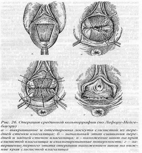 operatsiya-formirovaniya-vlagalishe-video-porno-ogromnoy-zhopi