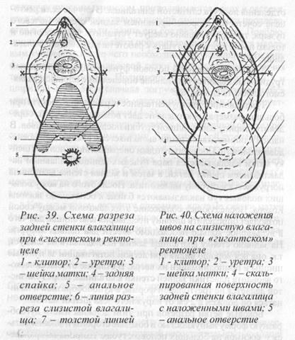 zhenshina-v-raskritom-vlagalishe-vidna-matka-foto-svingeri